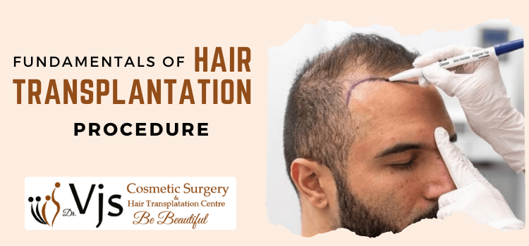 What do you need to know about hair transplant? Are the results permanent?